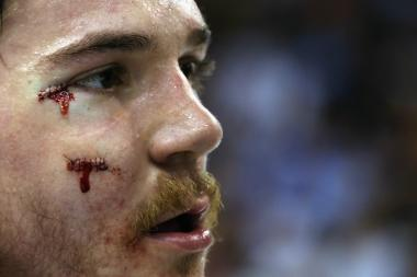 Blackhawks forward Andrew Shaw is auctioning off the stitches he received after taking a puck to the face.