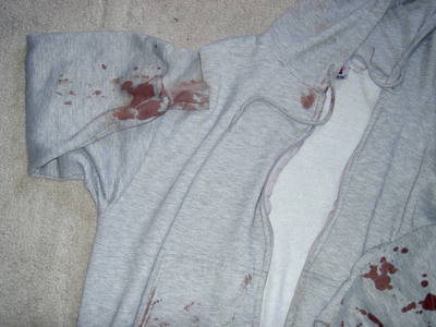 Michael O' Reilly's sweatshirt was bloodied after two men attacked him for $40 in Isham Park on June 6, 2012.