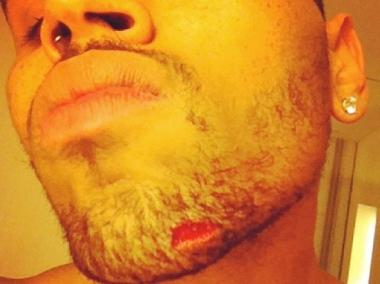 Chris Brown reportedly suffered a gash to his chin after a bust up with members of Drake's crew.
