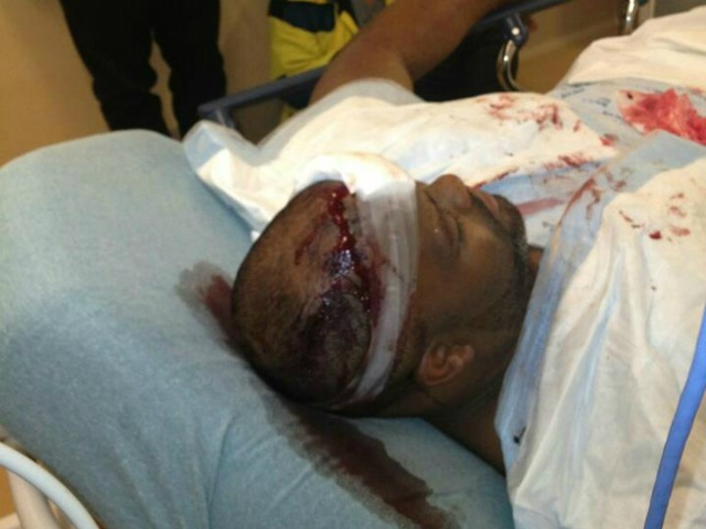 Chris Brown's bodyguard, identified in news reports as Big Pat, suffered a head wound.