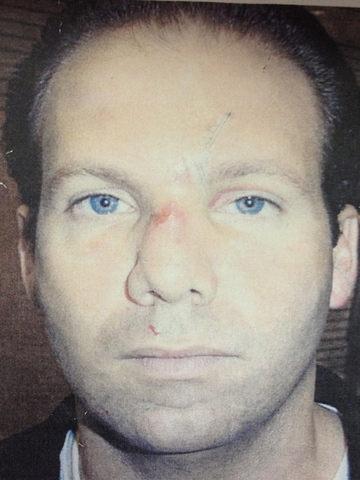 Steven Ercolino was shot and killed outside the Empire State Building on Aug. 24, 2012., 2012 (picture taken 2001, after Ercolino was in a car accident while a passenger in a cab).