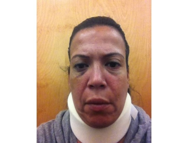 <p>A photo of EMT Terersa Soler after she was allegedly beaten by Brooklyn ADA Michael Jaccarino.</p>
