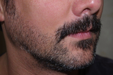 More New Yorkers with depleted beards are getting surgical facial hair procedures, doctors told DNAinfo New York.