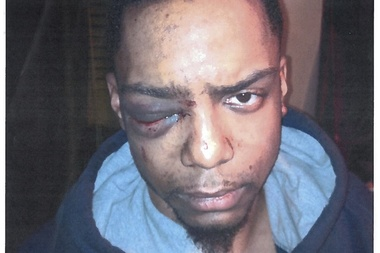 Fashion student Taj Patterson is suing the men charged with attacking him in December for damages.