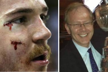 Blackhawks forward Andrew Shaw auctioned off the stitches he received after taking a puck to the face.