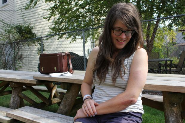 Jana Kinsman, 27, said she was attacked while riding her bicycle in Logan Square early Tuesday.