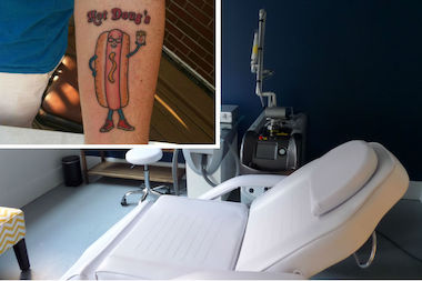 "Sempurna Restoration Clinic's laser treatment room. Inset: a Hot Doug's tattoo from ""Hot Doug's: The Book."""