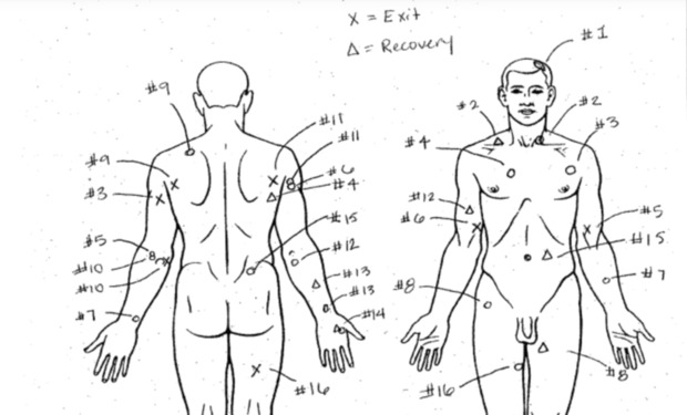 An autopsy image showing where Laquan McDonald was shot.