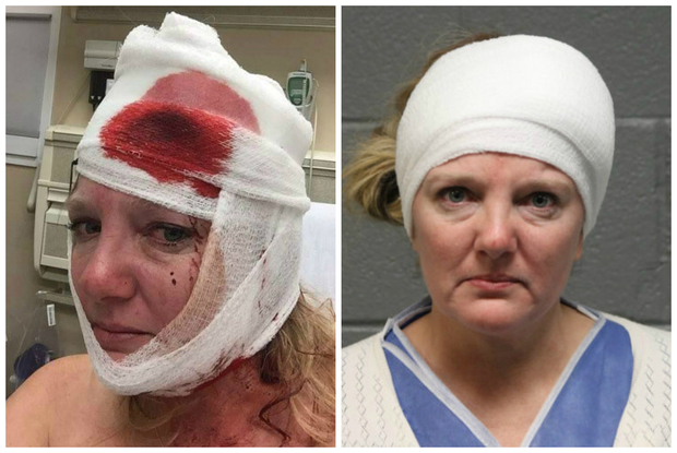 Kathleen Griffin says she was beaten by police after the Donald Trump rally in Chicago.