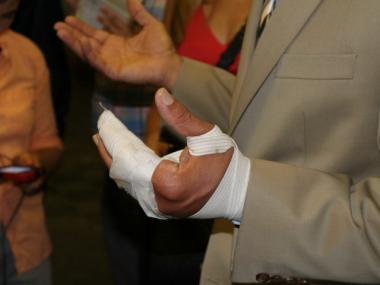 Schools Chancellor Dennis Walcott's injured left hand.