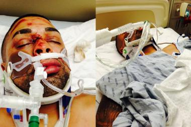 Edwin Mieses, whom friends call Jay Meeze, received two broken legs in the crash and may be paralyzed, police said.
