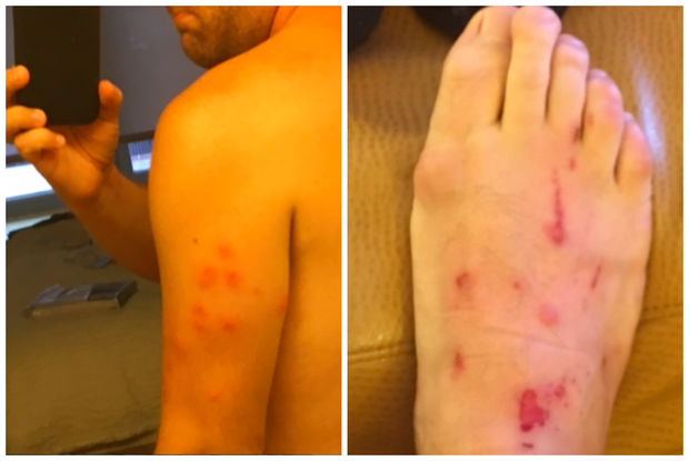 This man is suing a Downtown hotel after saying he got bit by bed bugs during his stay.