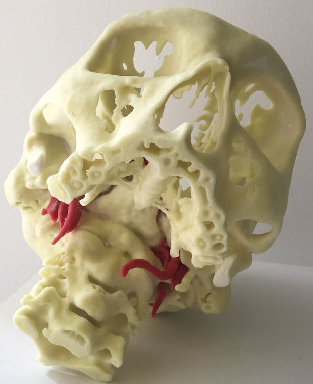 Mount Sinai Hospital Is Making 3D Prints of New Yorkers' Skulls