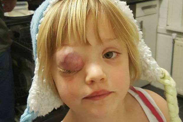 A young girl from the Netherlands needs to come to Chicago for surgery to remove a tumor from her eyelid.