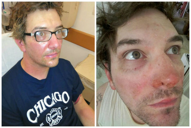Keith Buzzard suffered burns to his skin while working on a faulty pizza oven at Santullo's.