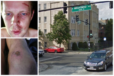 Richard Pallardy was the victim of a hit-and-run in Logan Square last Friday.