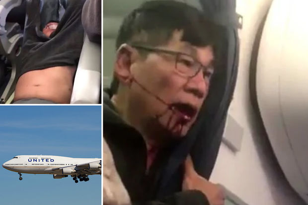 United Settles With Doctor Dragged Off Plane, But Amount Is 'Confidential'